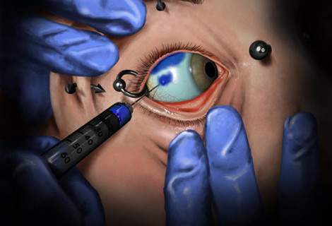 Scleral Tattooing